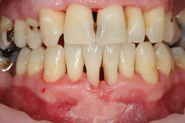 zuby-po-dentalnej-hygiene-vitadent